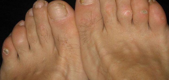 Sandals for Corns