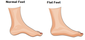 Flip Flops for Flat Feet