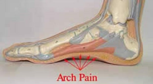 Skechers Sandals for PLantar fasciitis