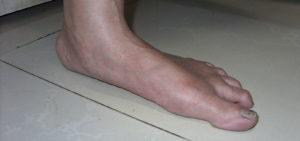 Vionic Sandals for Flat feet