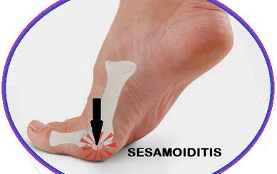 sandals for Sesamoiditis