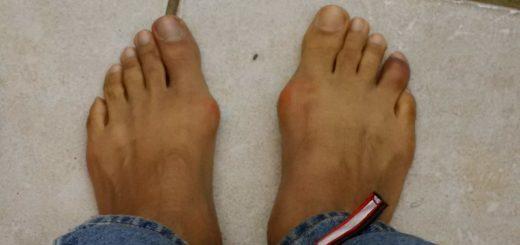 Flip Flops for Bunions